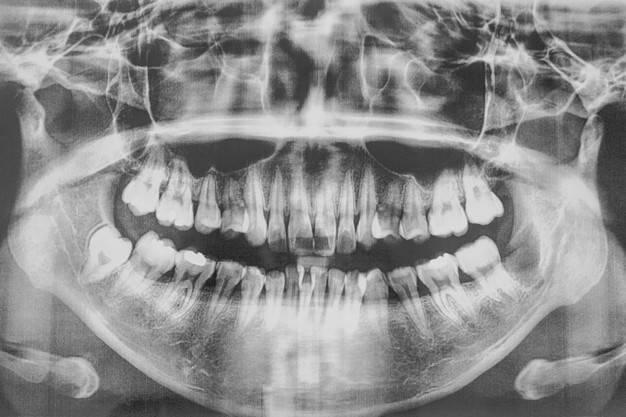 رادیولوژی دندان در همدان