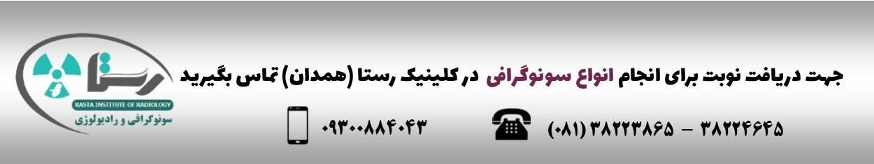 سونوگرافی در همدان