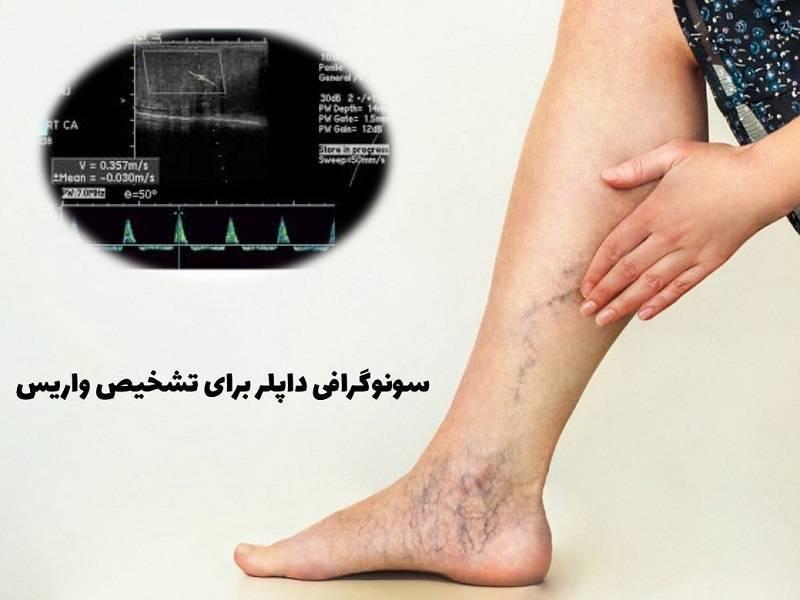 سونوگرافی داپلر برای تشخیص واریس