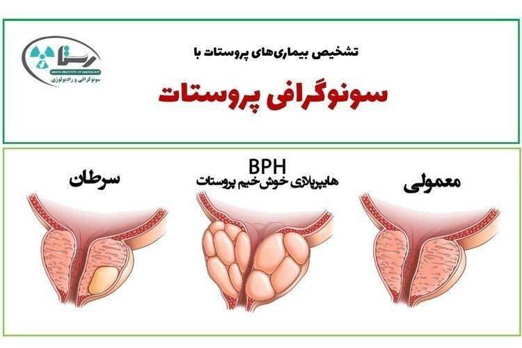 سونوگرافی پروستات در همدان