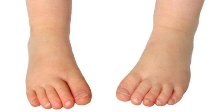 چرخش پا به داخل در دوران نوزادی