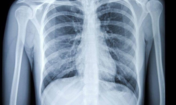 کاربردهای رادیولوژی قفسه سینه