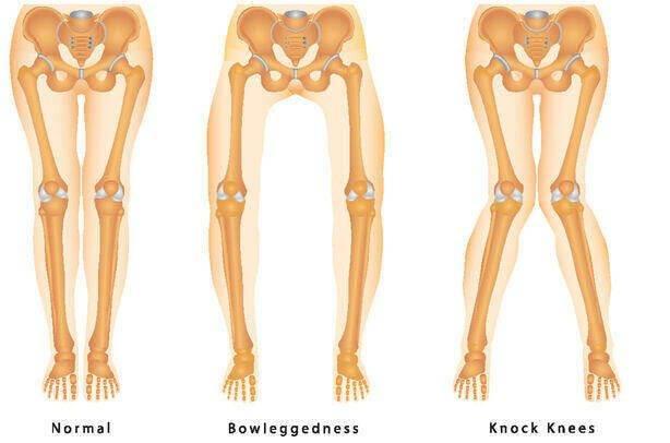 تشخیص اختلال در اندام تحتانی با رادیولوژی تری جوینت