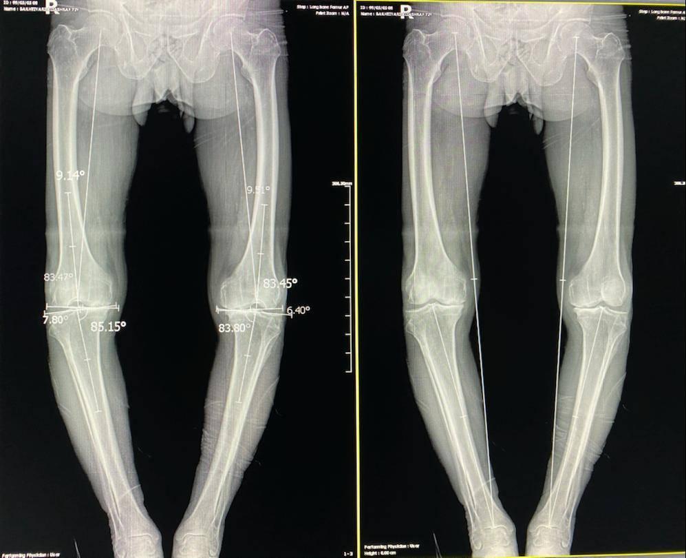 رادیولوژی تری جوینت در همدان