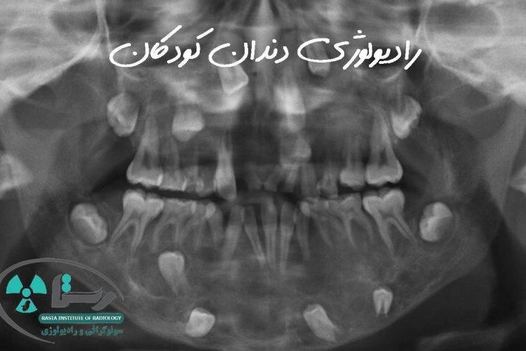 رادیولوژی دندان کودکان در همدان