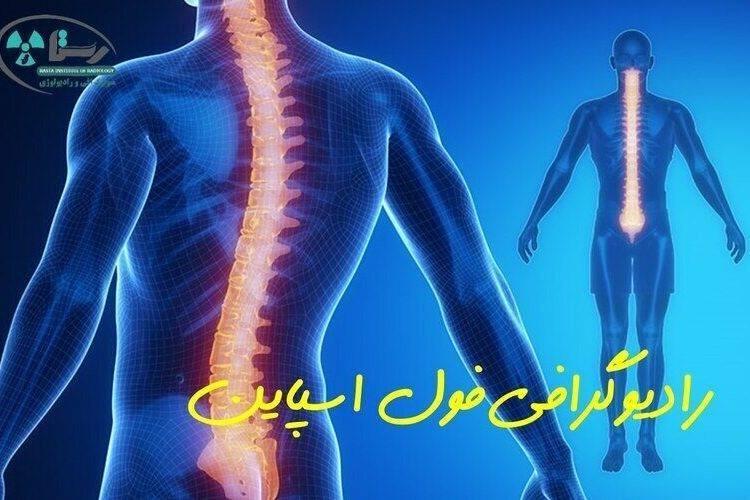 رادیولوژی فول اسپاین در همدان