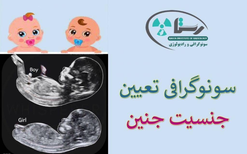 سونوگرافی تعیین جنسیت جنین در همدان
